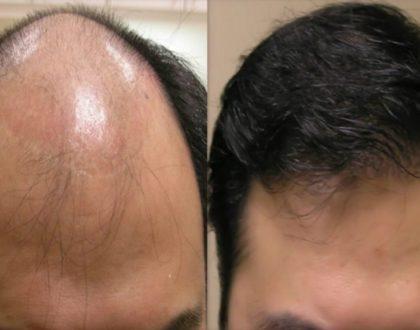 Hair Loss Tonic Malaysia